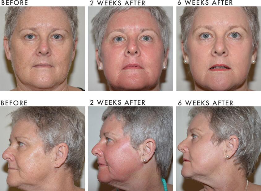 Laser Skin Resurfacing Newcastle Nsw Vamp Cosmetic Clinic