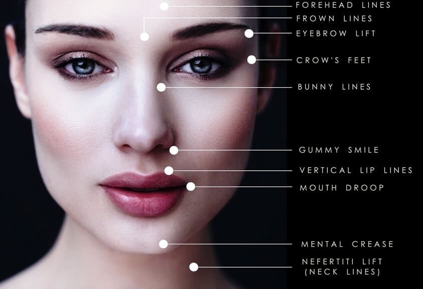 Dermal Fillers Newcastle Cheek Lip Fillers Vamp Cosmetic Clinic