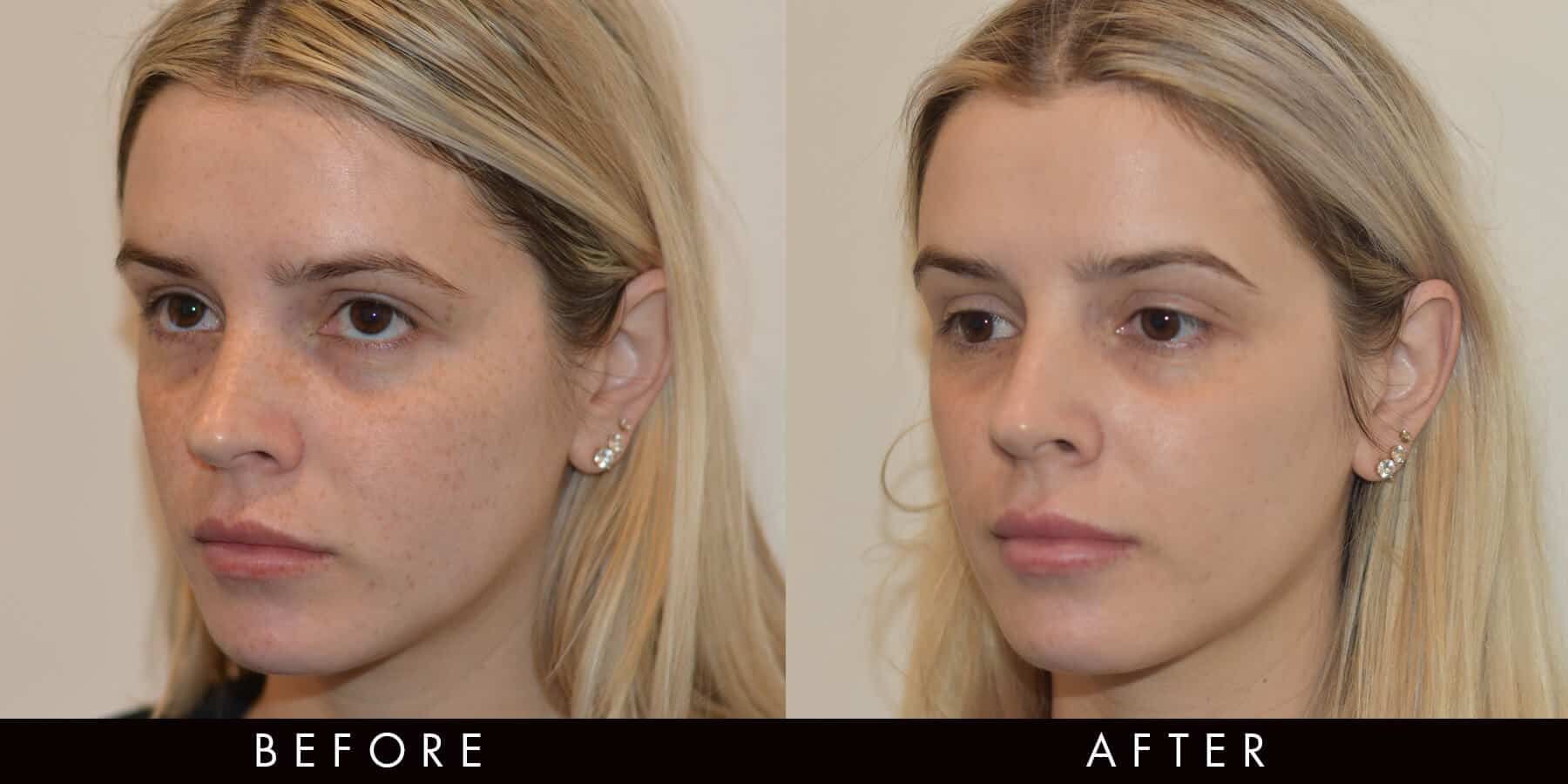 Picoway Resolve Freckles Acne Before & After Newcastle