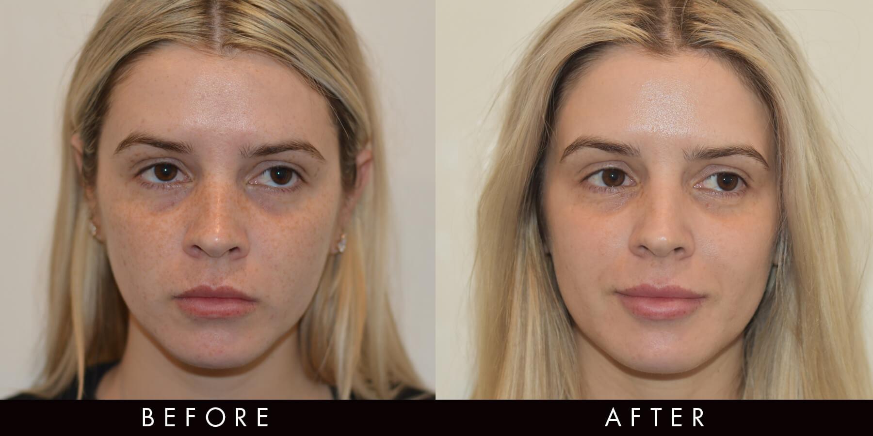 Picoway Resolve Freckles Acne Treatment Newcastle