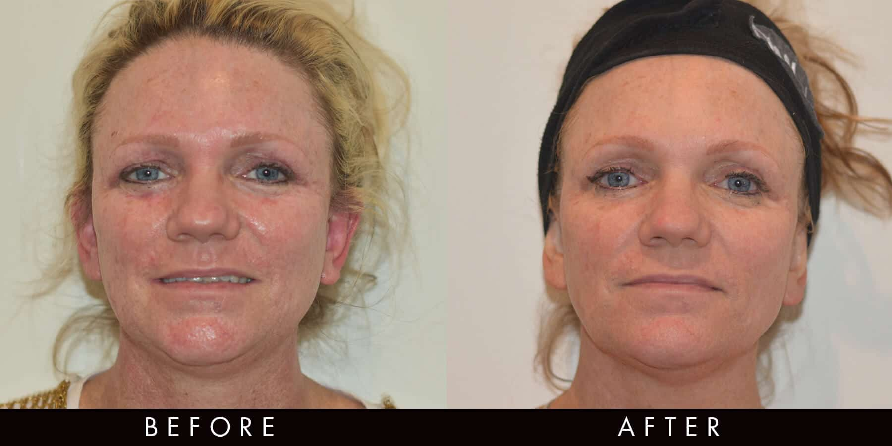 Picoway Resolve Sun Damage Before & After Newcastle