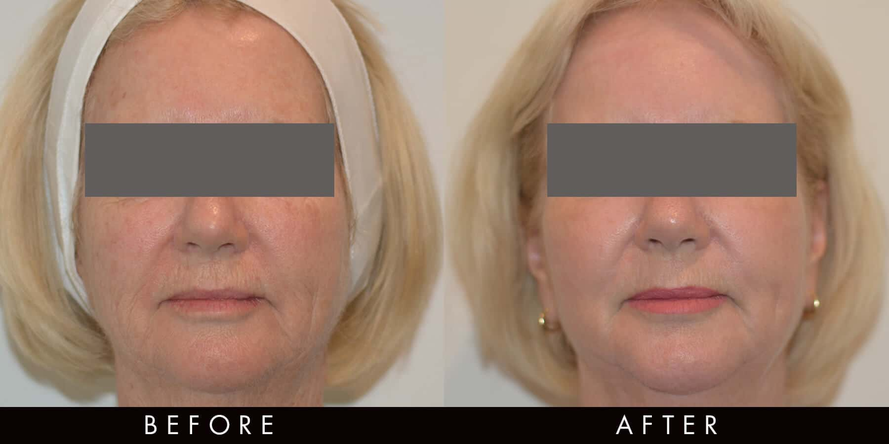 C02 Laser Skin Treatment Before After Newcastle