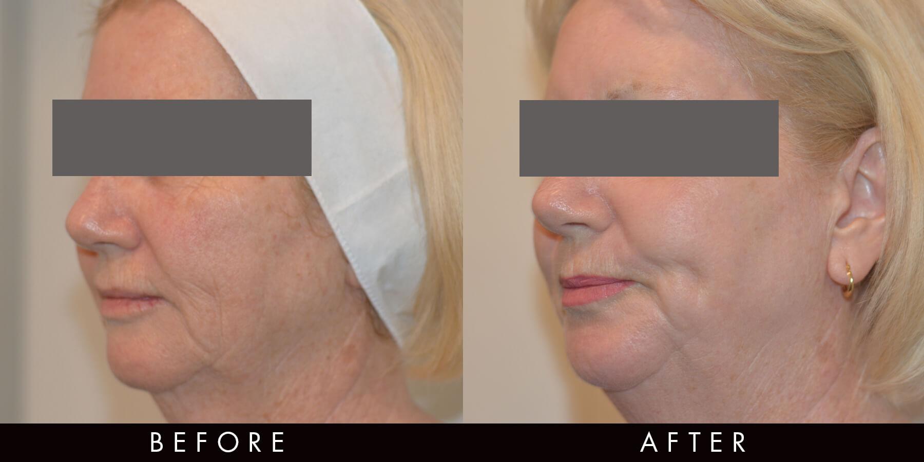 Co2 Full Face Laser Treatment Newcastle