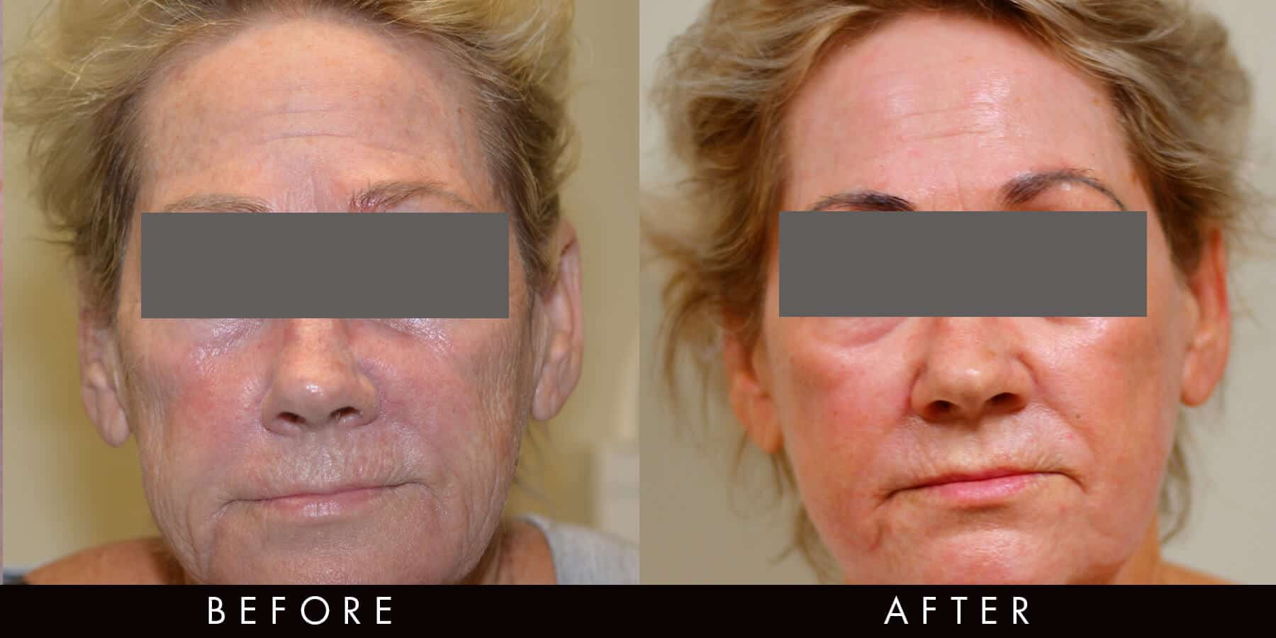 Laser Treatment Results Newcastle