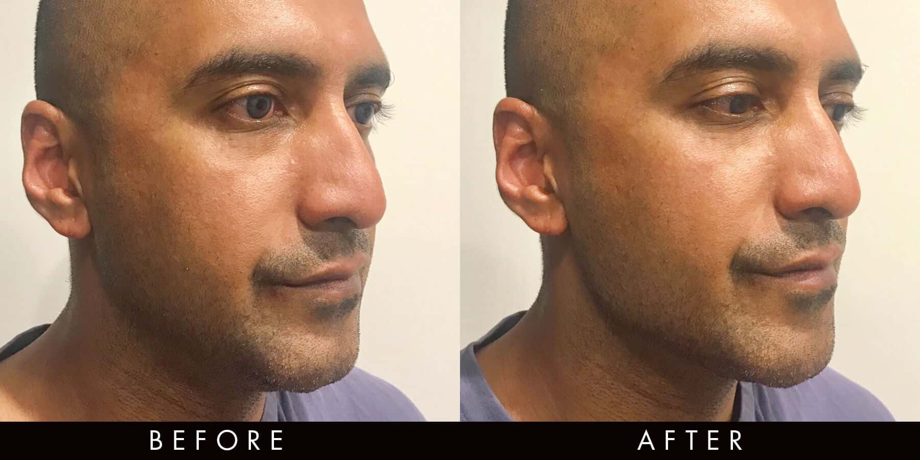 Dermal Chin Jawline Filler Before After Newcastle