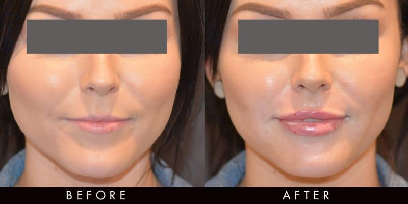 Dermal Fillers Photo Gallery Vamp Cosmetic Clinic