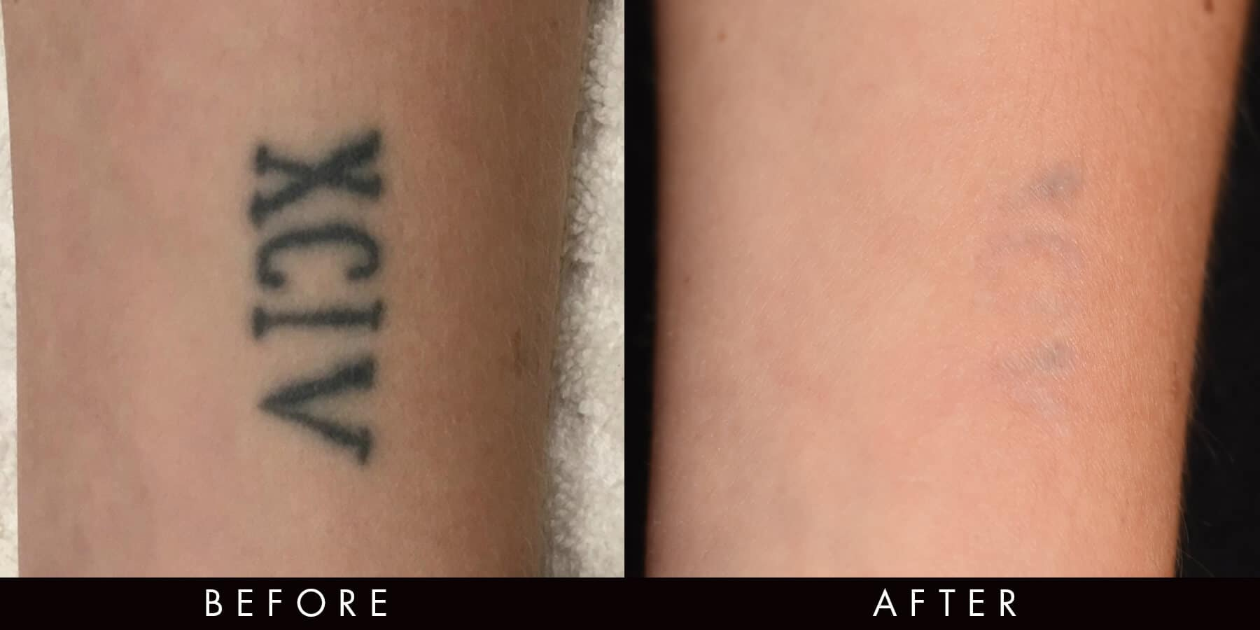 Tattoo Removal Treatments Picoway Newcastle