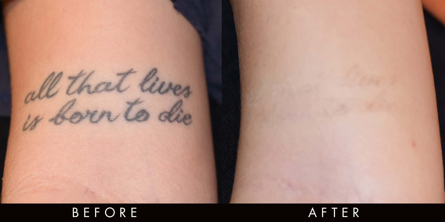 Picoway Tattoo Removal Before After Newcastle