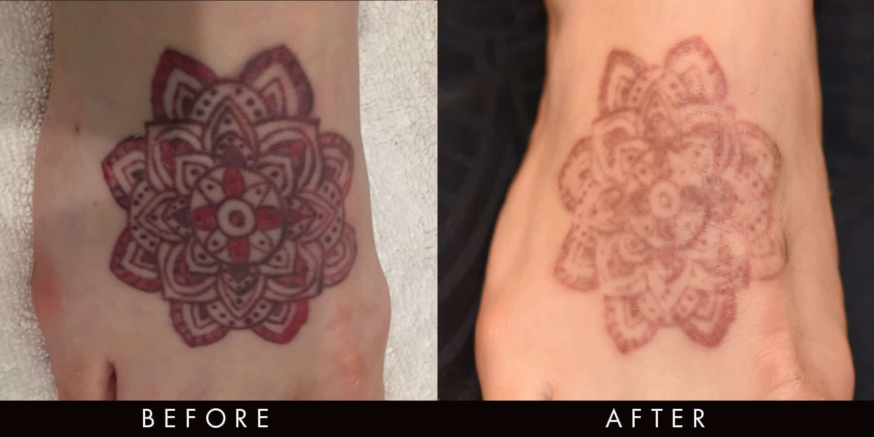 Tattoo Removal Picoway Before & After Newcastle