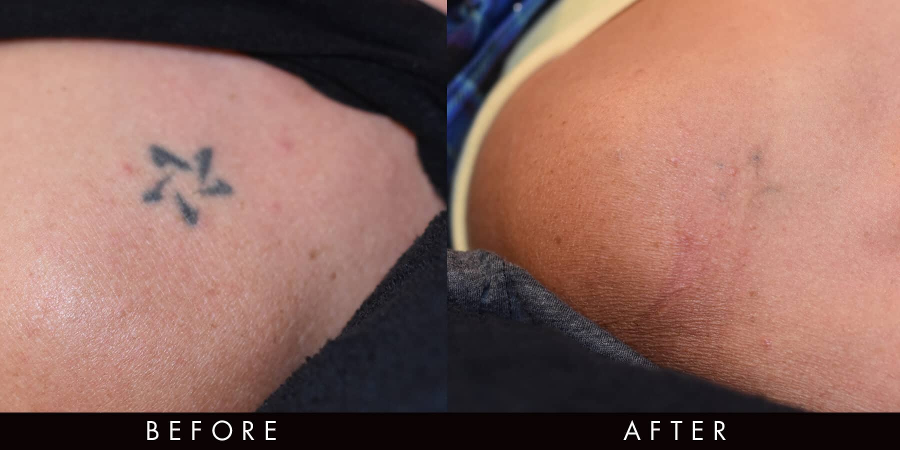Picoway Tattoo Removal Newcastle