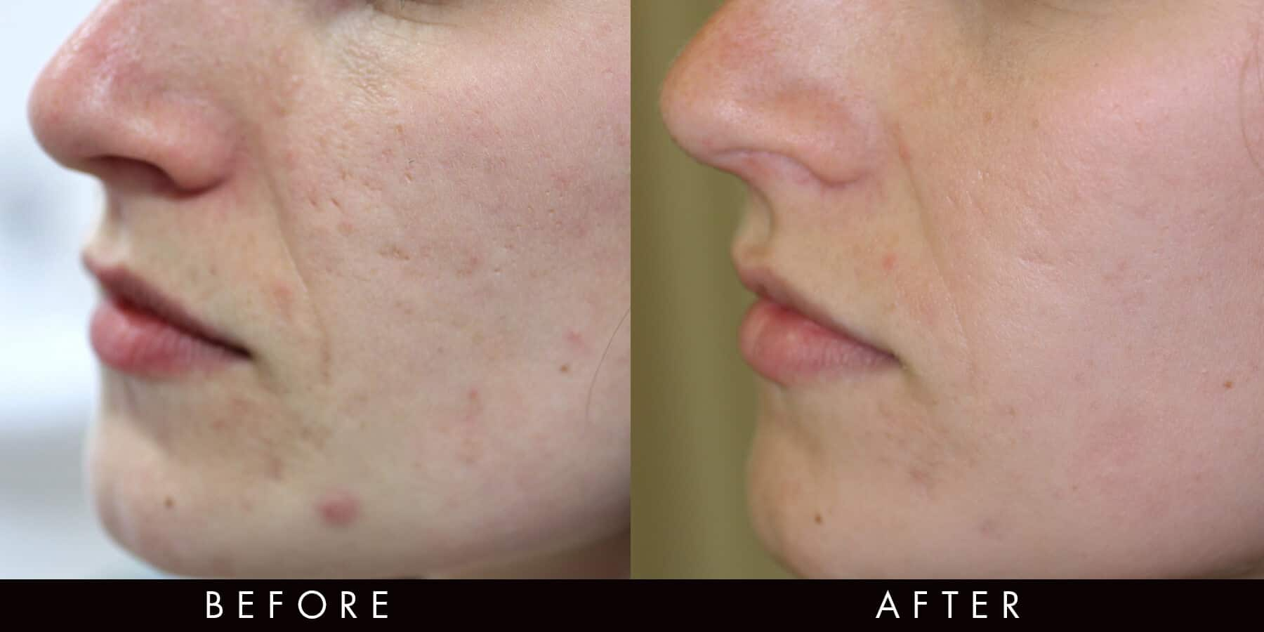 Fractional Radiofrequency Acne Scarring Newcastle