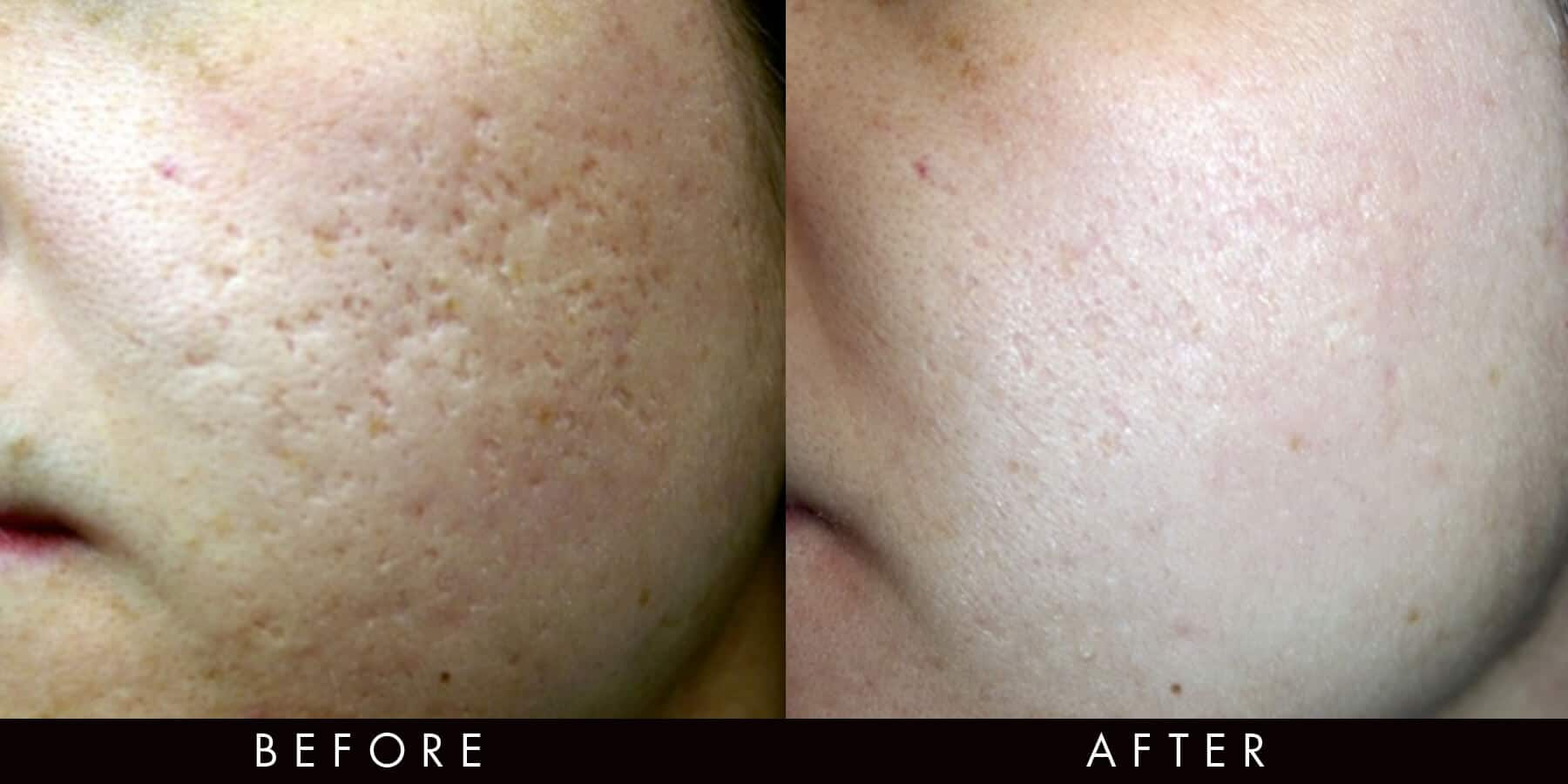Acne Scarring Treatment Fractional Radiofrequency Newcastle