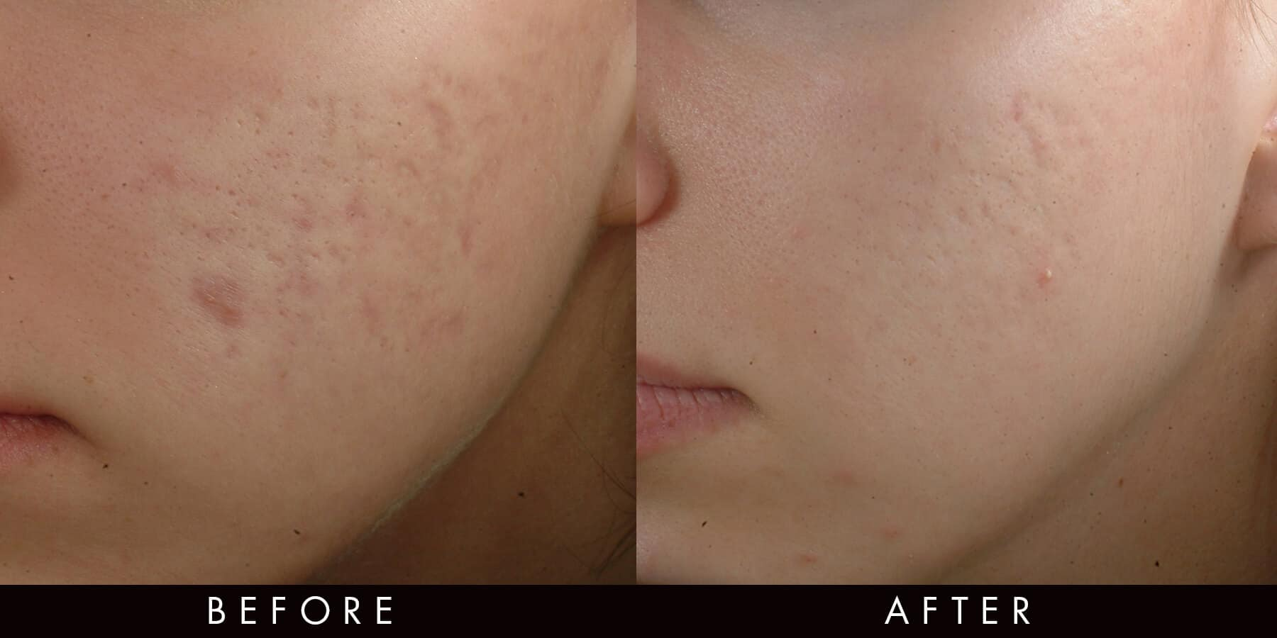 Acne Scarring Treatment Newcastle