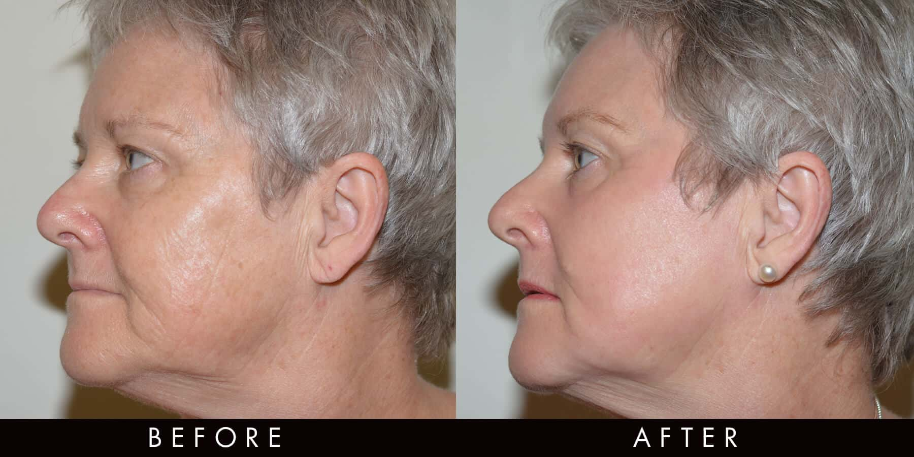 Co2 Laser Treatment Before & After Newcastle