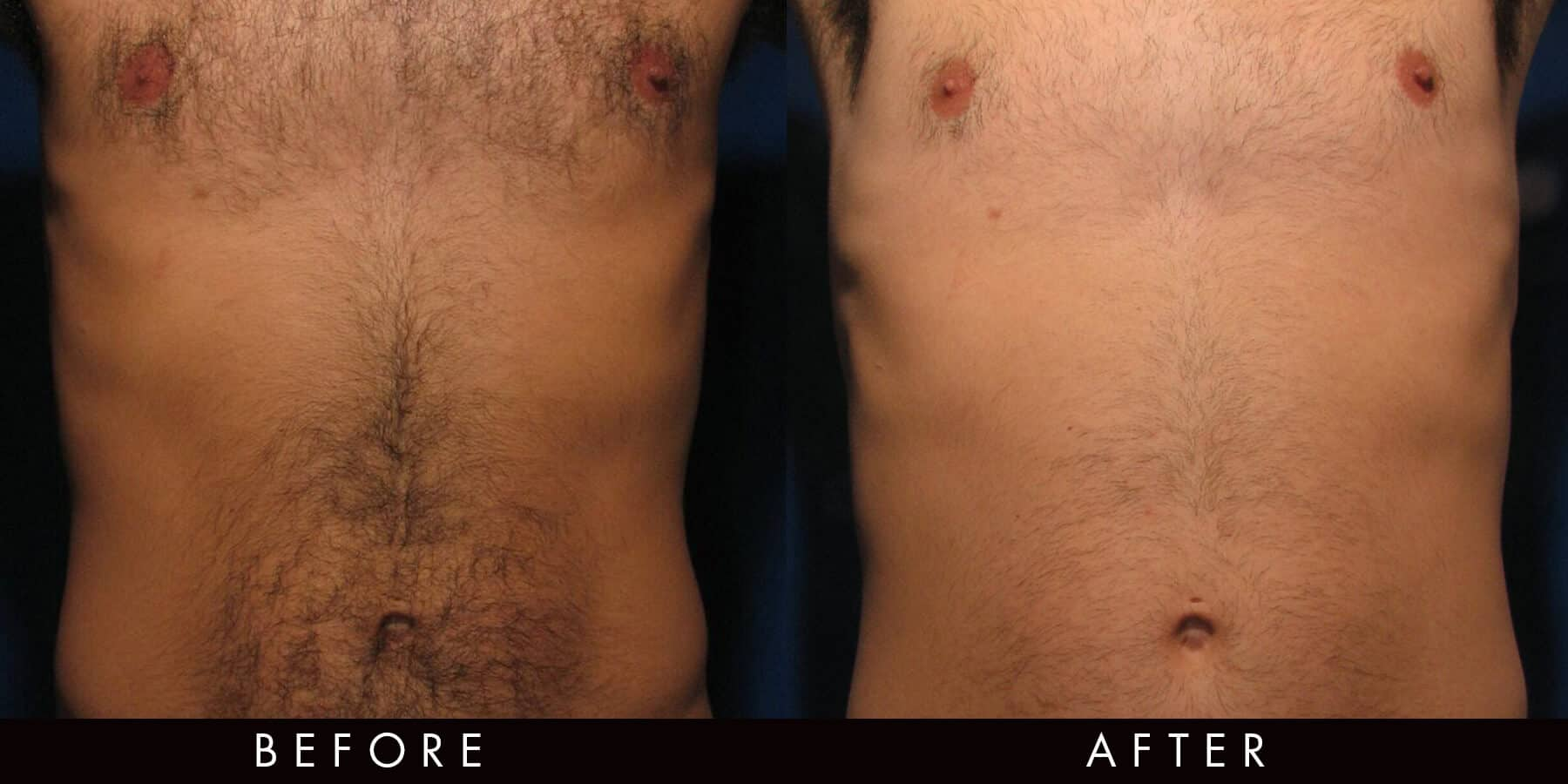 Laser Hair Reduction Newcastle