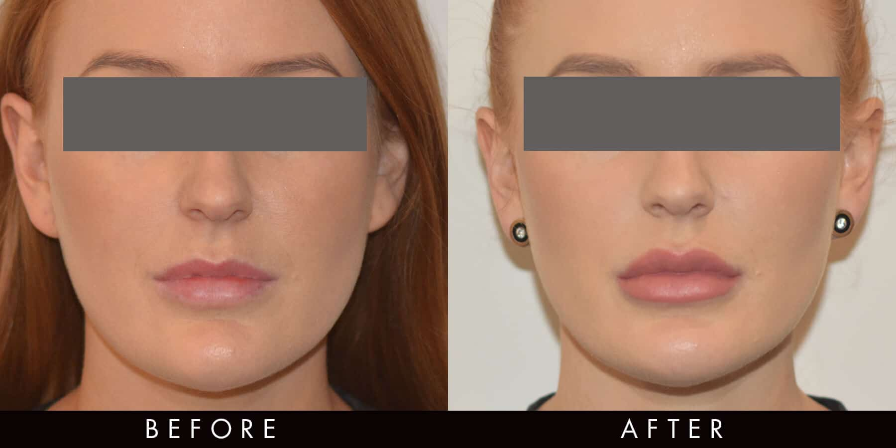 Lip Filler Before & After Newcastle