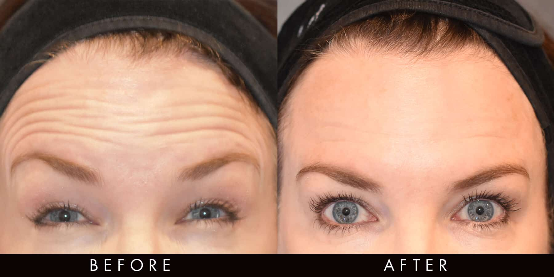 Wrinkle Reduction Injections Newcastle