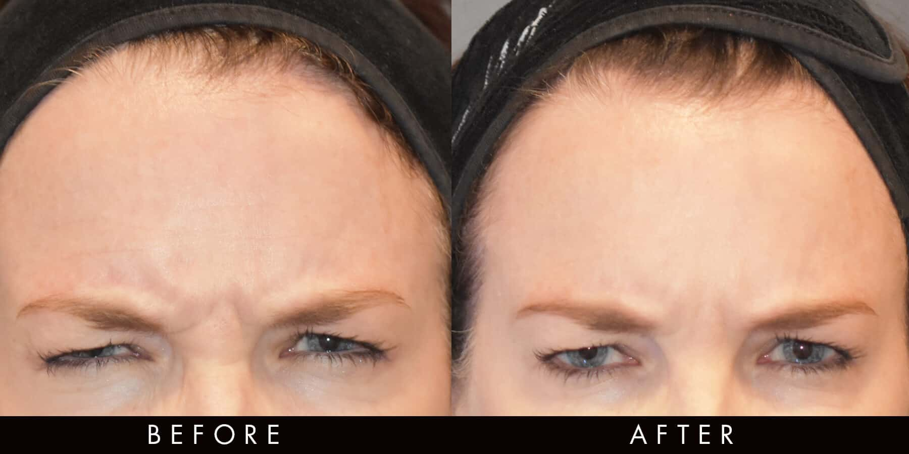 Anti-Wrinkle Injections Forehead Line Reduction newcastle
