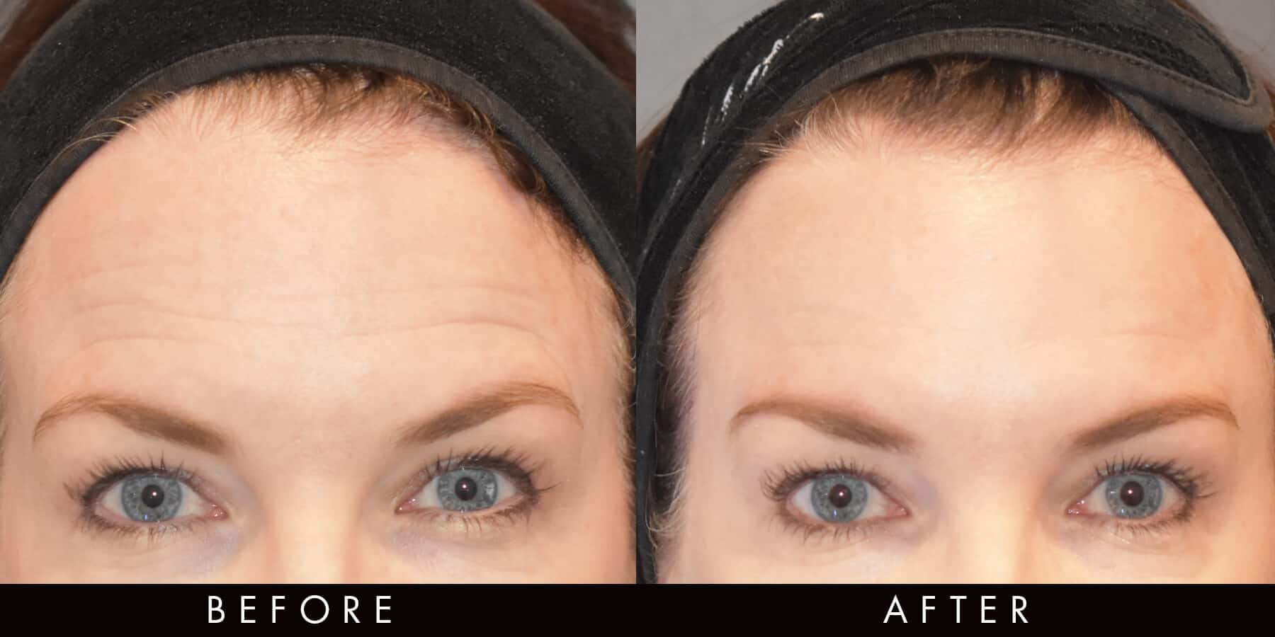Anti-Wrinkle Injections Forehead Lines Newcastle