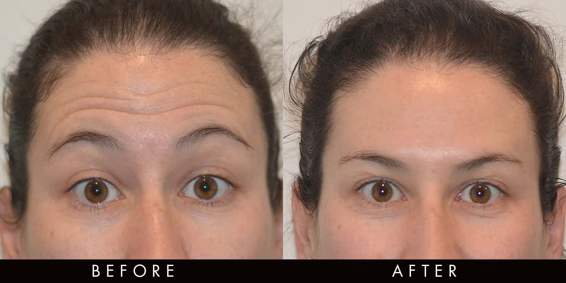 Forehead Lines Anti-Wrinkle Injections Newcastle