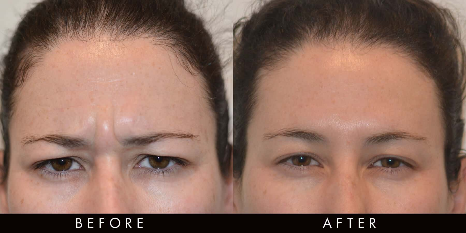 Anti-Wrinkle Injection Frown Lines Newcastle