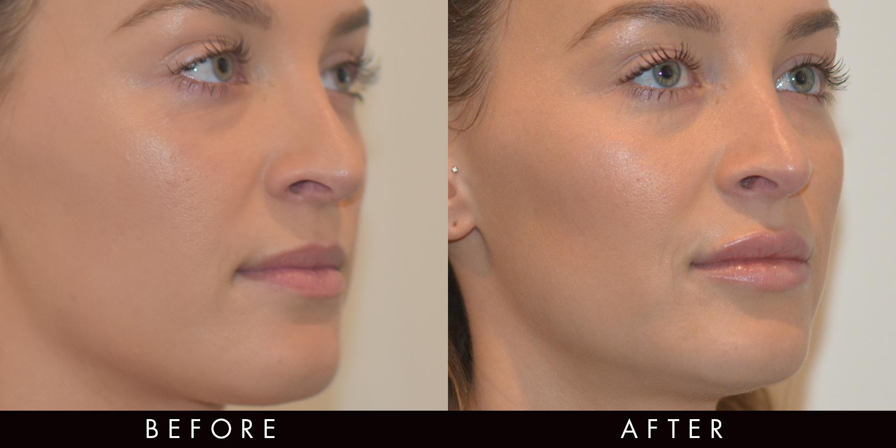 Dermal Fillers Photo Gallery Vamp Cosmetic Clinic