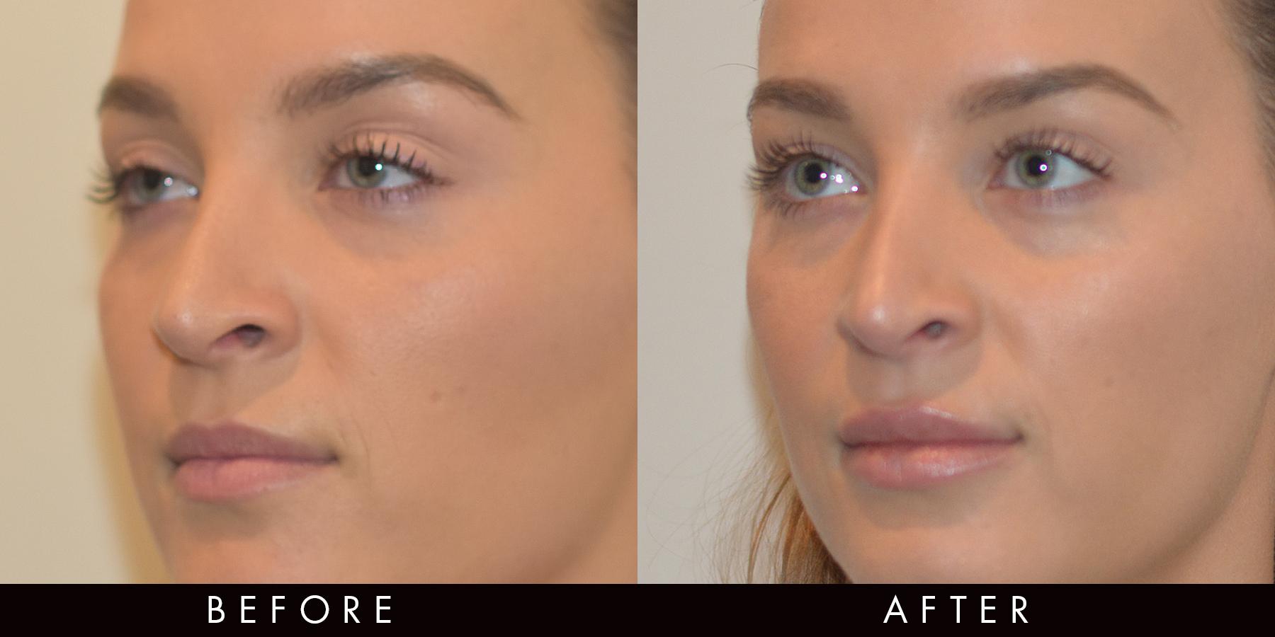 Dermal Lip Filler Before & After Newcastle