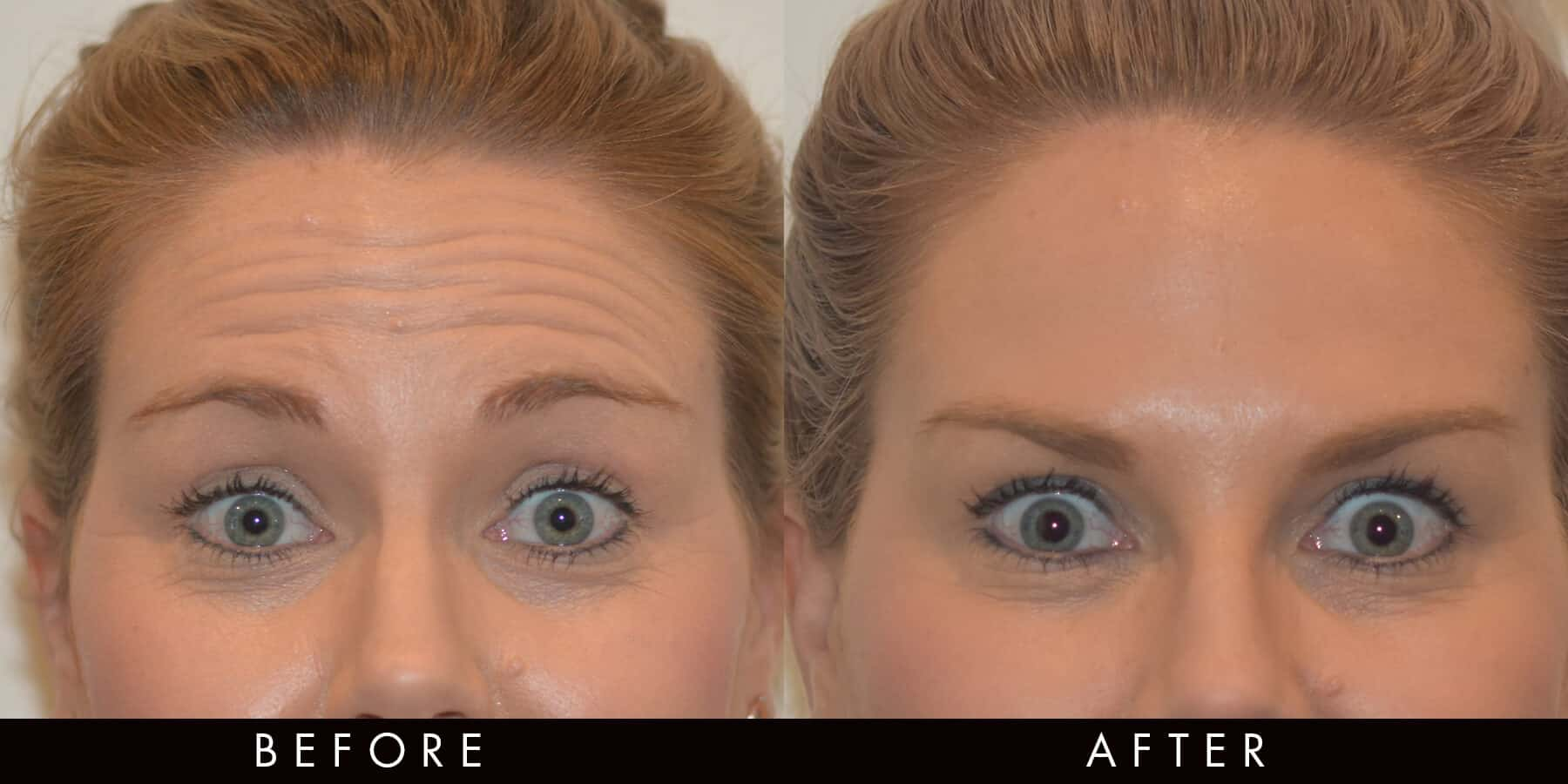 Anti-wrinkle for the reduction of forehead lines (client treated by Dr Monique)
