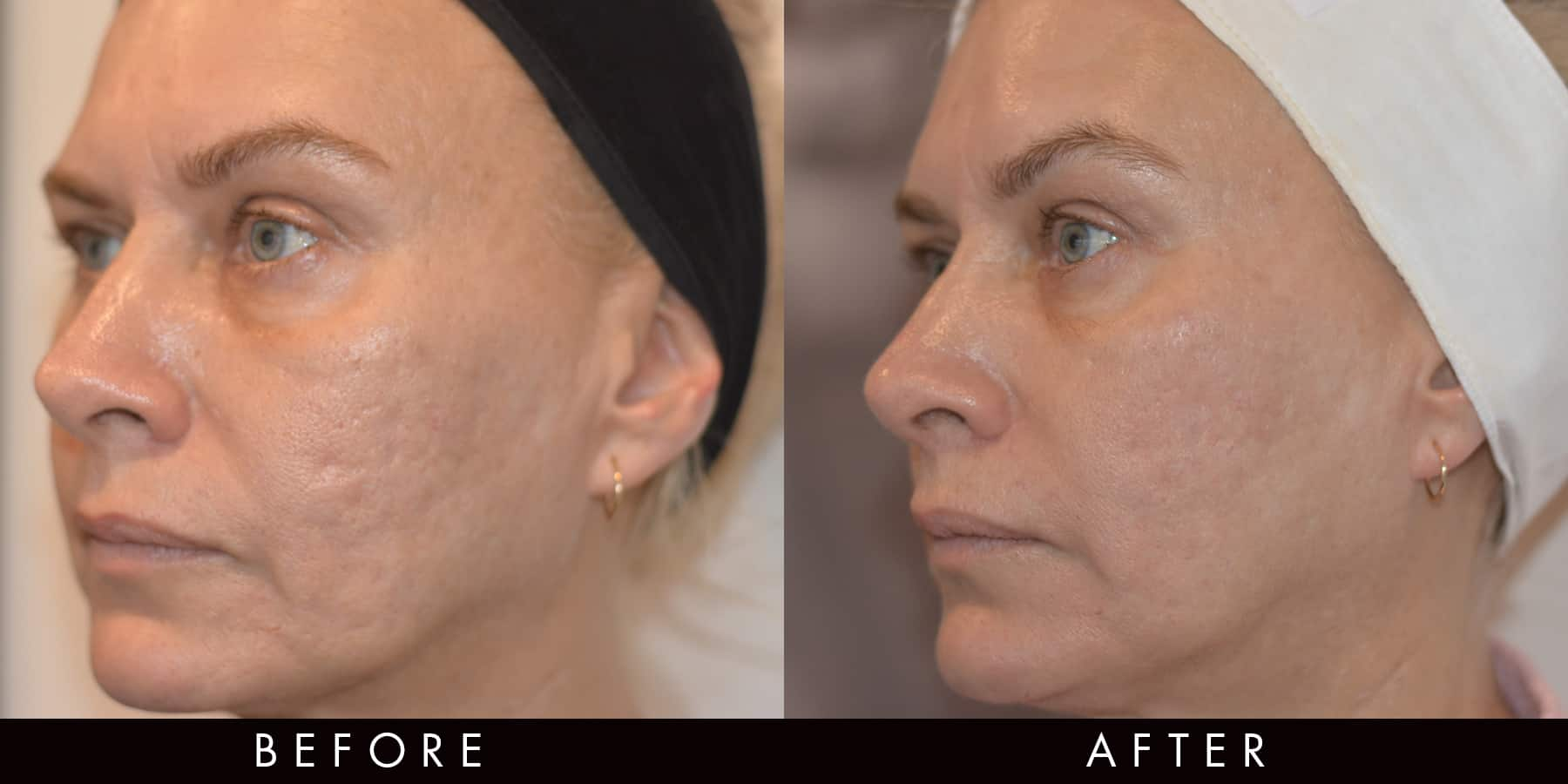 Fractional Radio Frequency Acne Scarring Before & After Newcastle