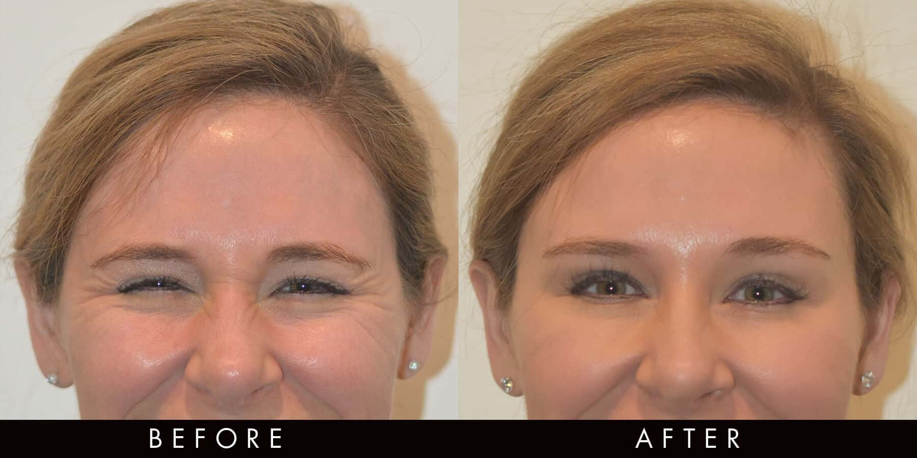 Anti-Wrinkle Injections Crows Feet Newcastle