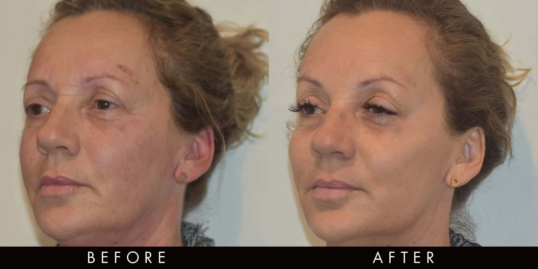 Marionette Lines Wrinkle Injections Newcastle