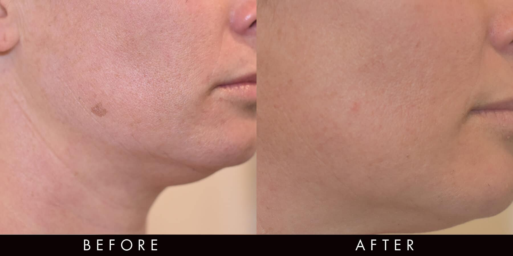 PicoWay Pigment Spot Removal Newcastle