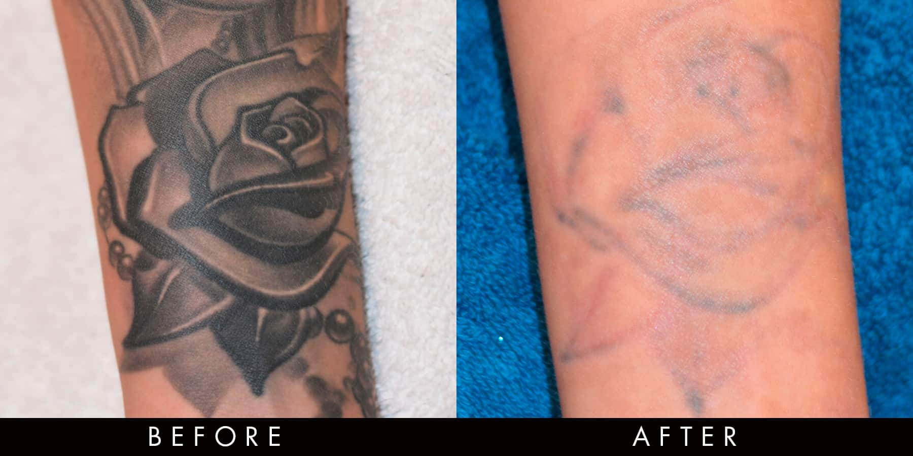 PicoWay Tattoo Removal Before & After Newcastle