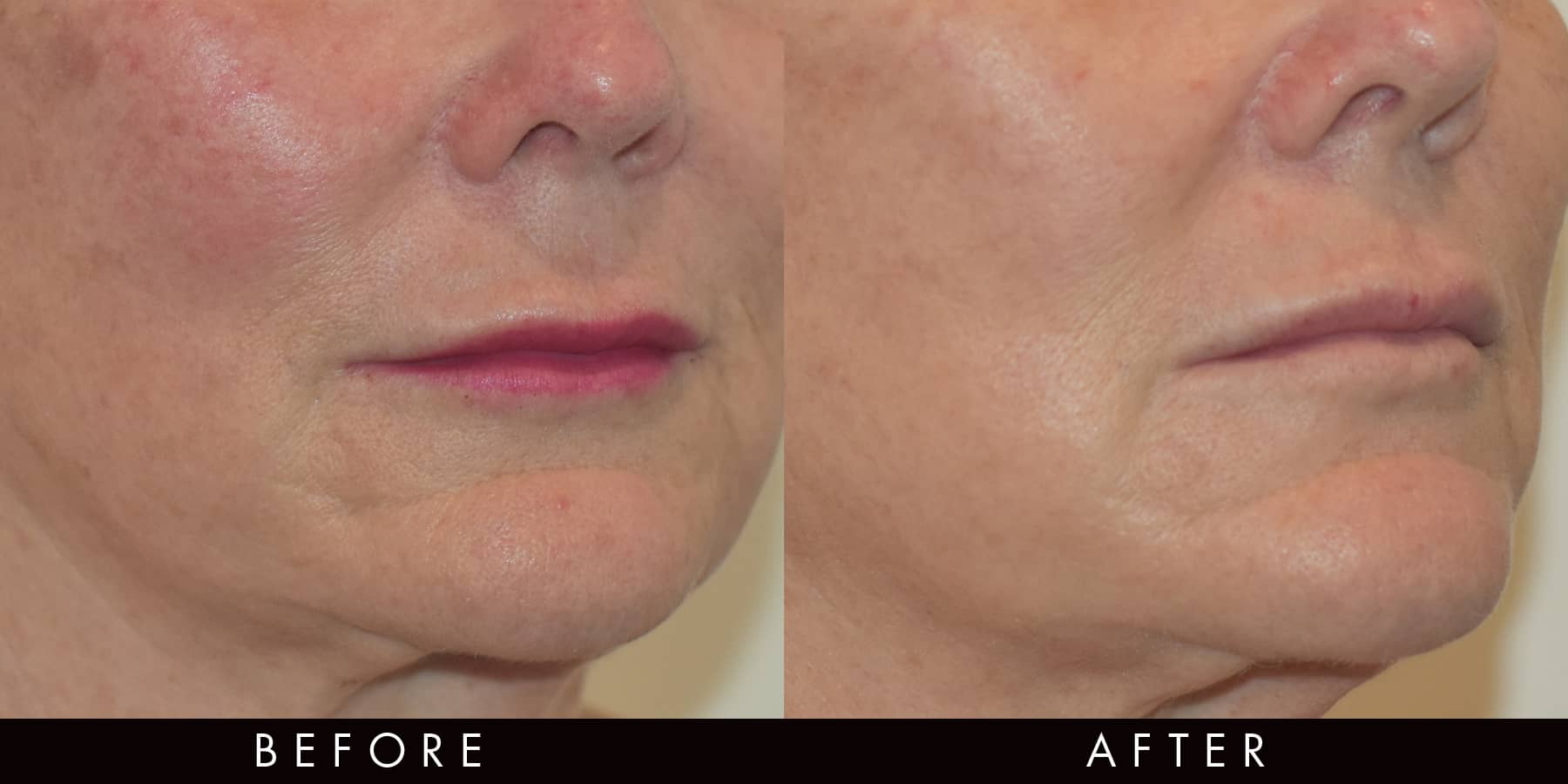 Pigmentation Redness PicoWay Before & After Newcastle