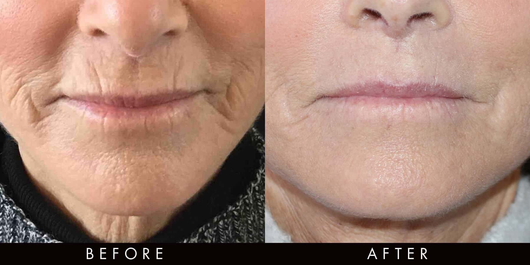 Profound Before & After Skin Tightening Newcastle