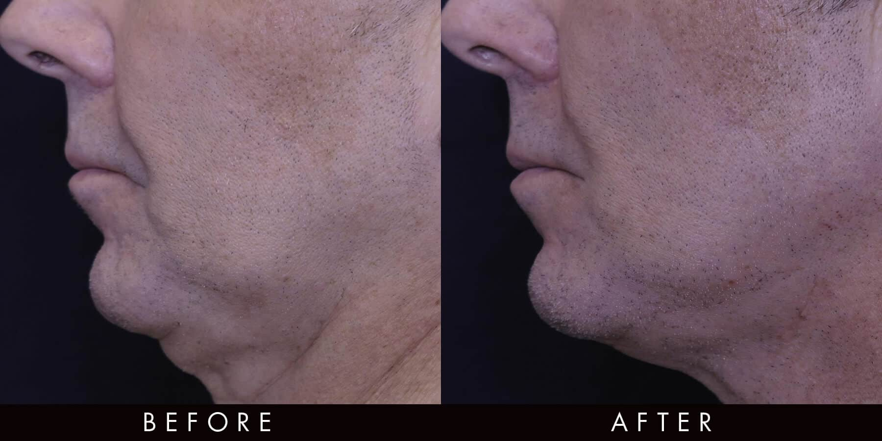 Skin Tightening Treatment Before & After Newcastle