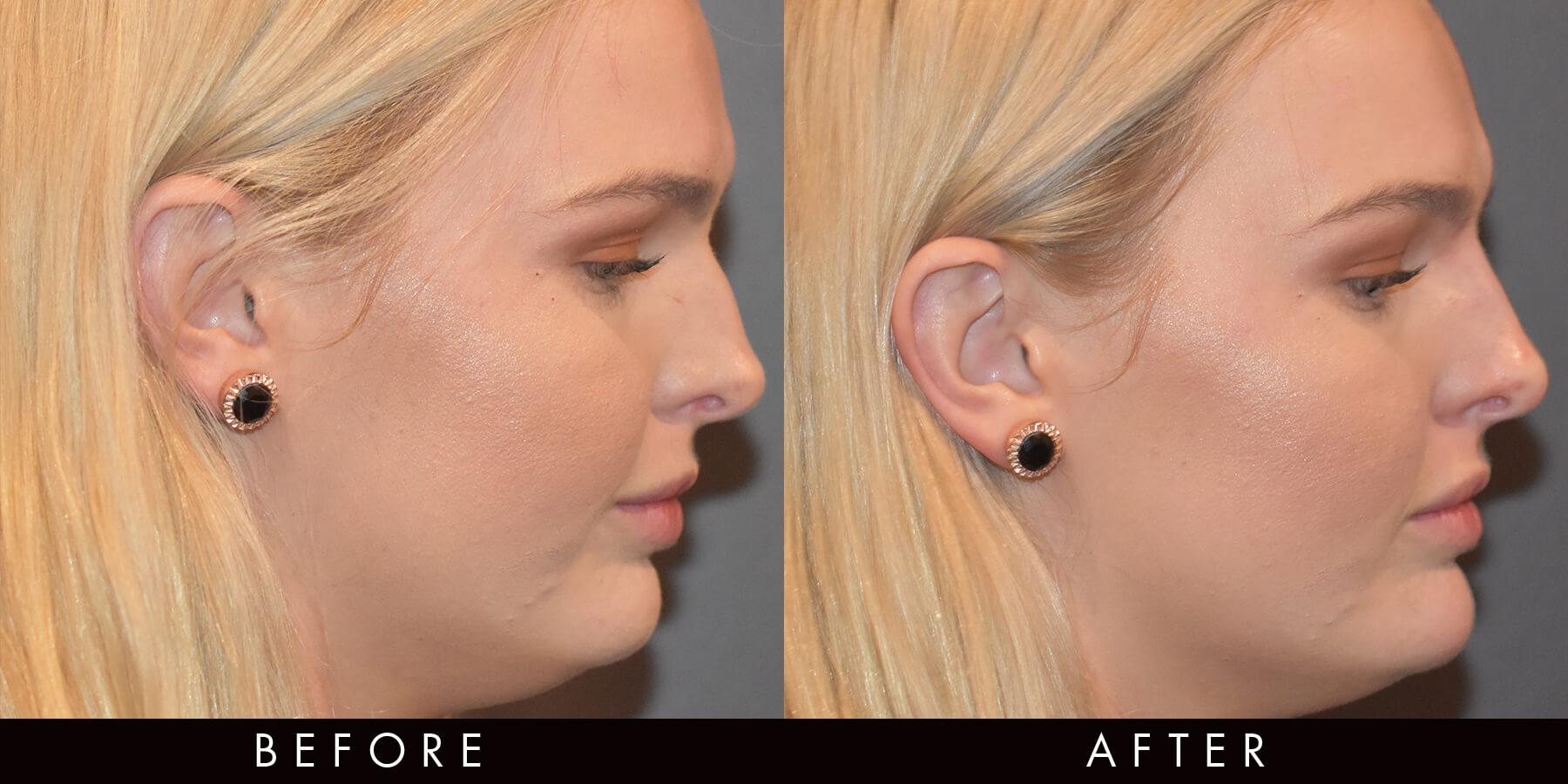 Nose Bump Dermal Filler Correction Newcastle