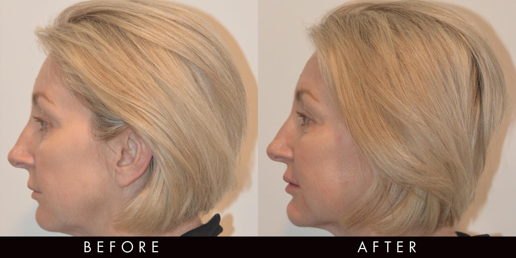 Cheek & Lower Face Filler Newcastle