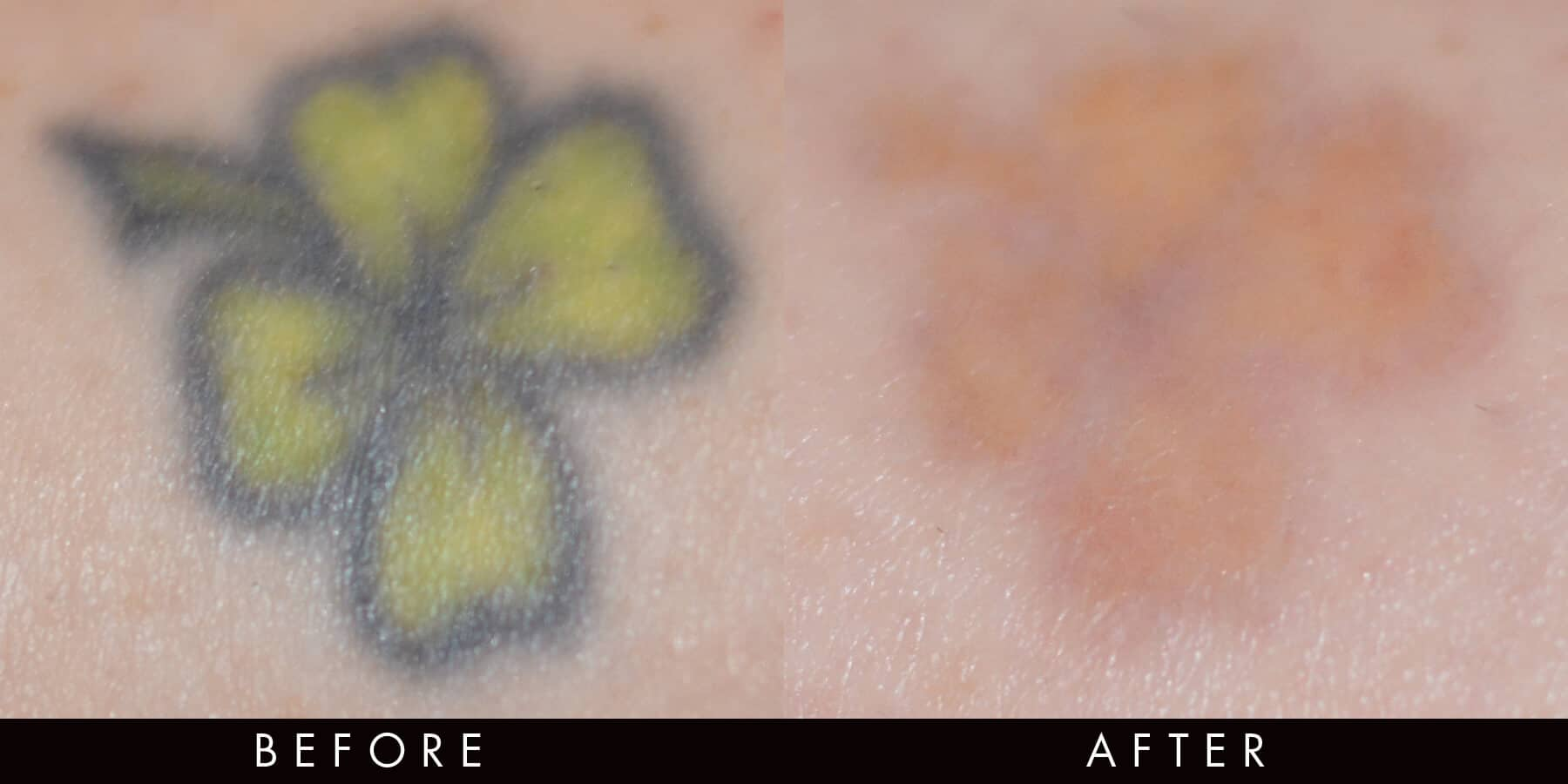 Laser Tattoo Removal Newcastle