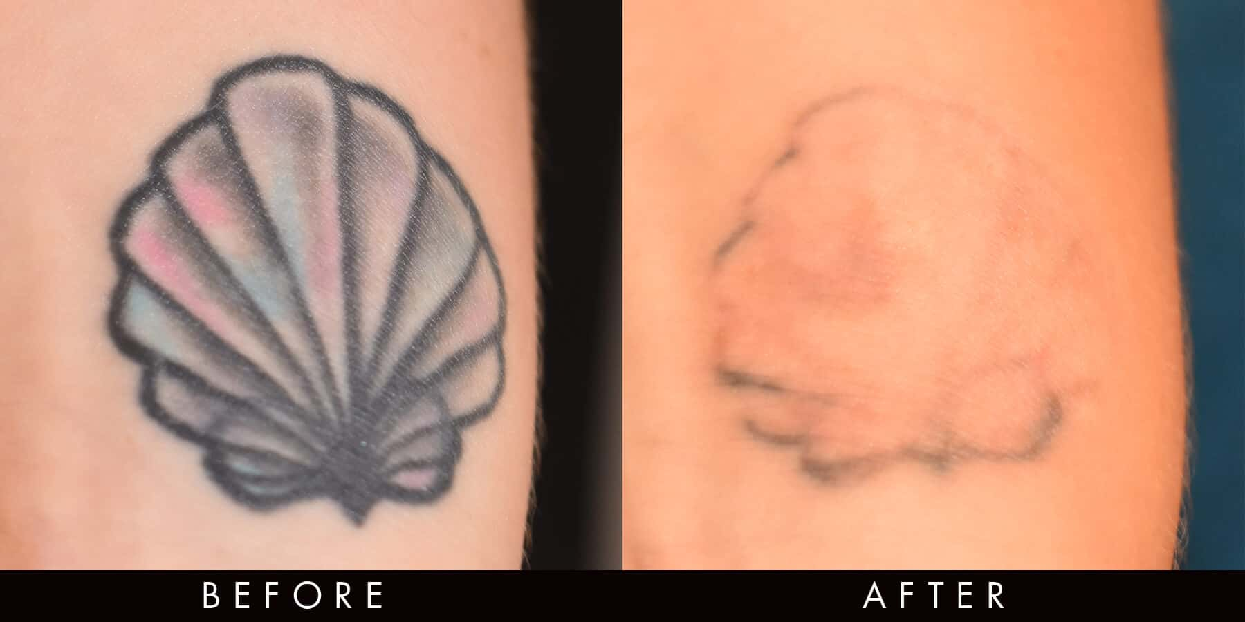 PicoWay Tattoo Laser Removal Newcastle