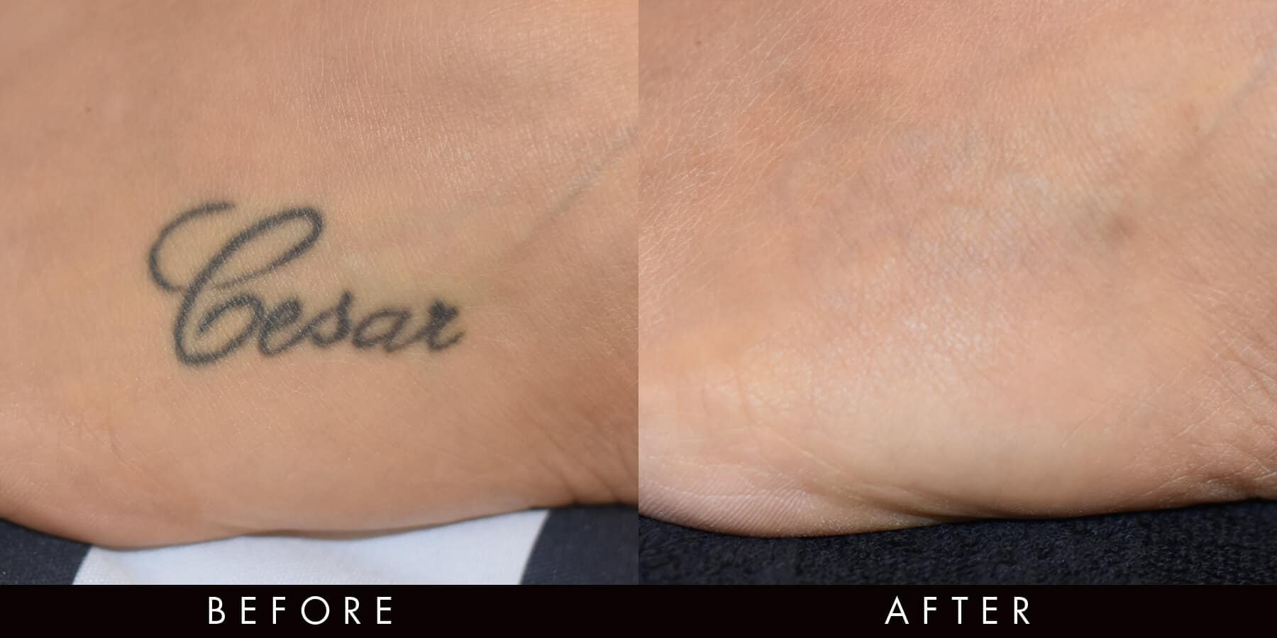 Tattoo Removal Before & After PicoWay Newcastle