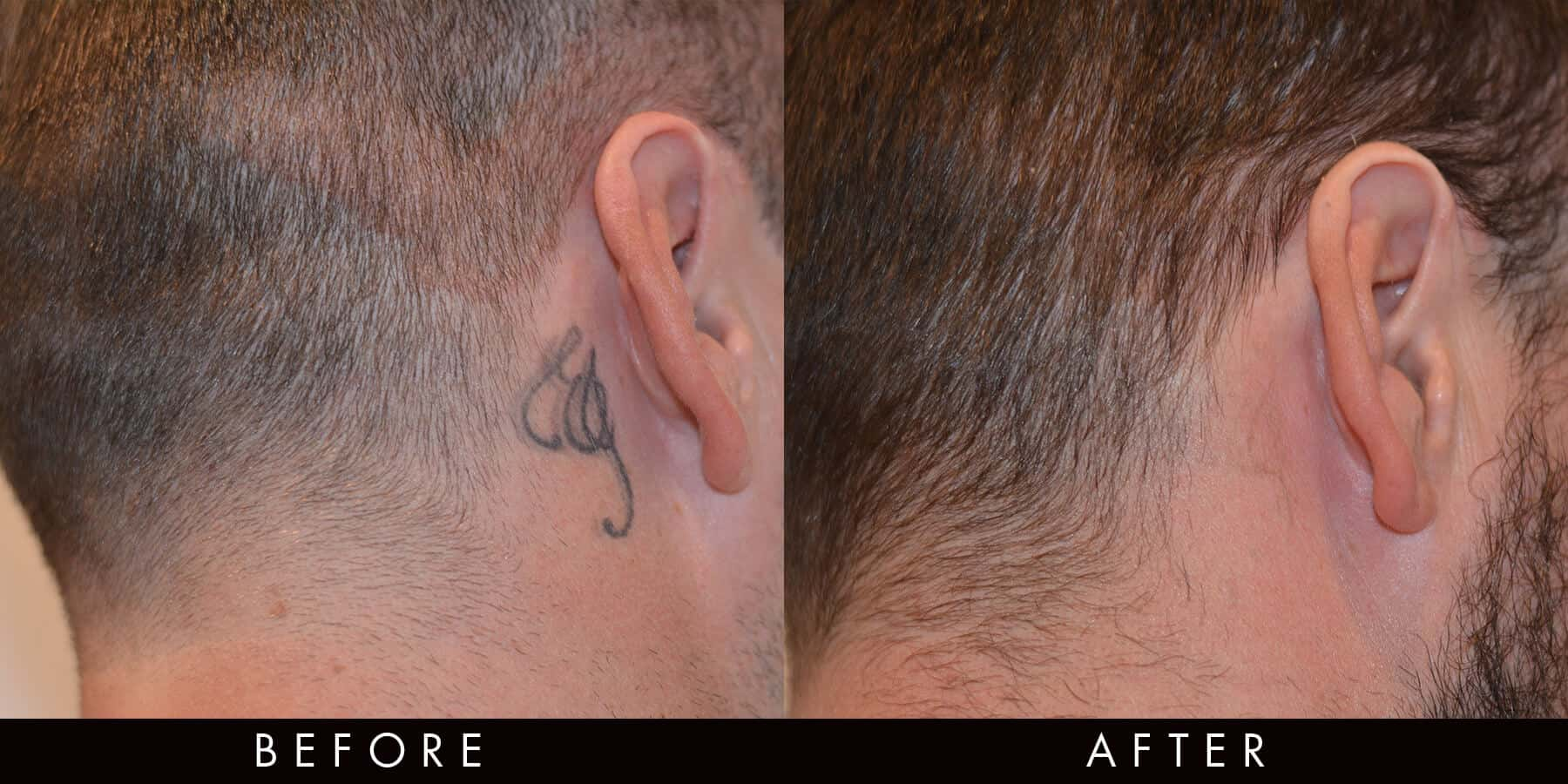 PicoWay Laser Tattoo Removal Newcastle