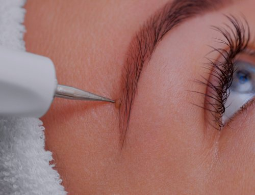 The low-down on laser mole removal