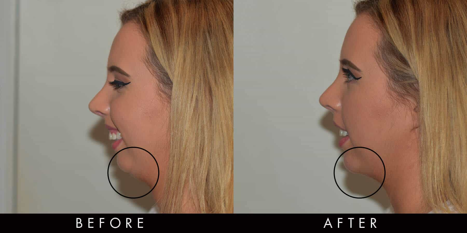 Dermal Filler Chin Before & After Newcastle