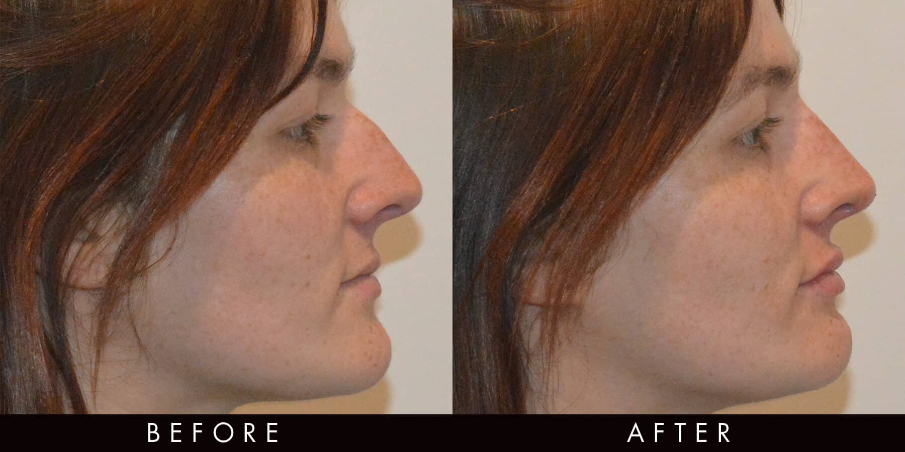 Filler Nose Bump Before & After Newcastle