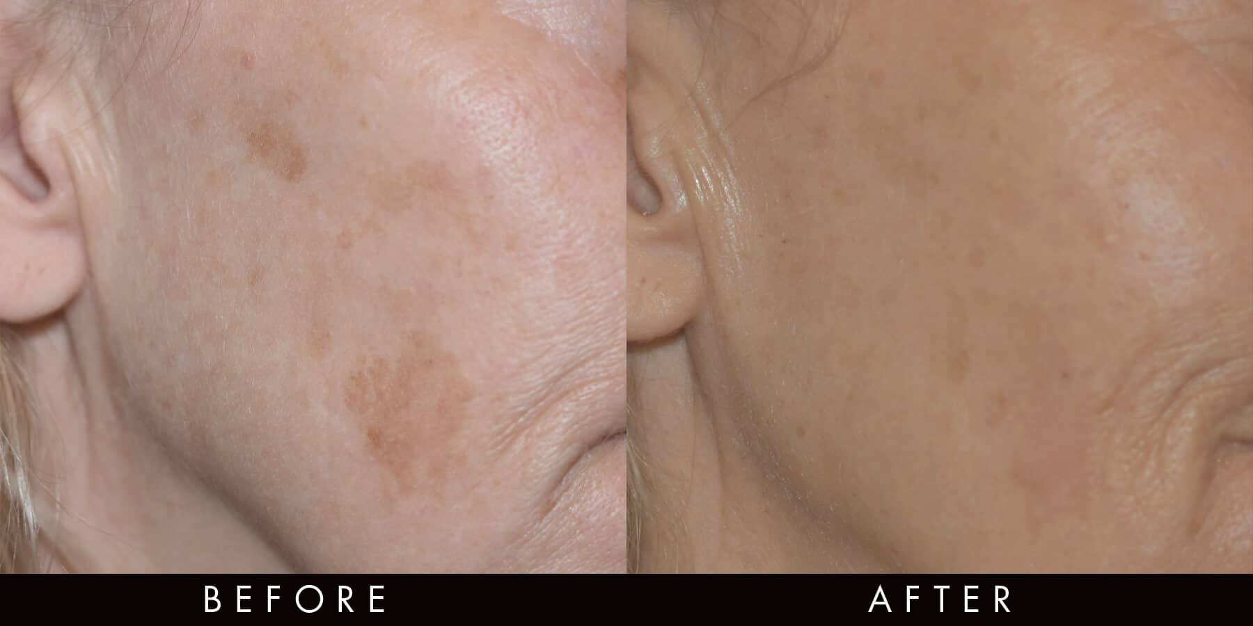 PicoWay Before & After Sun Spots Newcastle