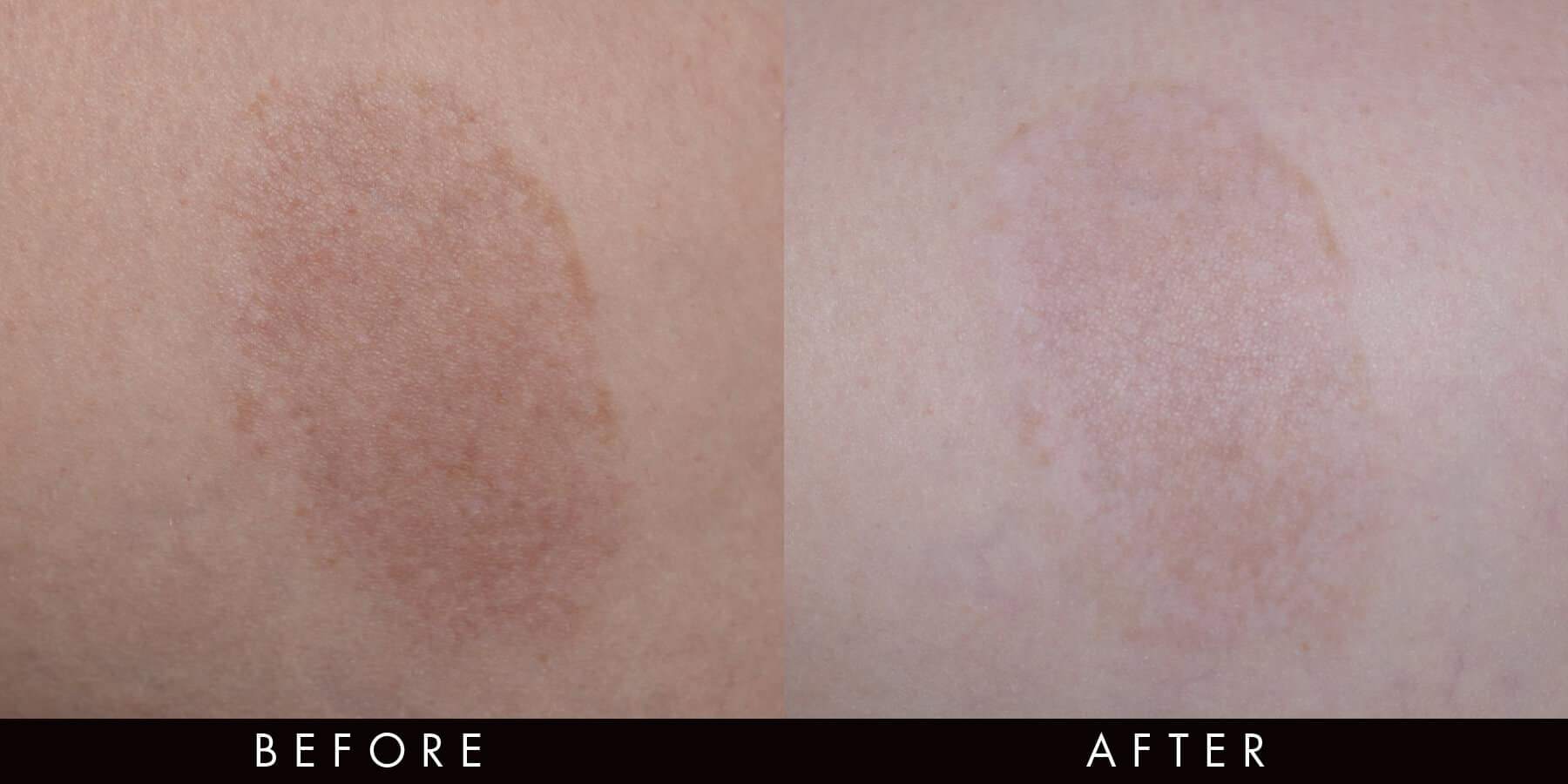 PicoWay Pigment Correction Before & After Newcastle